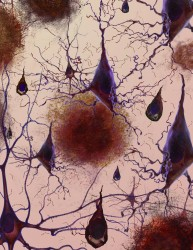 Alzheimer's Disease presents itself in brain tissue with abnormal clumps of protein fragments (plaques) and twisted strands of protein (tangles) that reduce the quantity and functionality of nerve cells. (Image courtesy of the National Institute on Aging/National Institutes of Health).